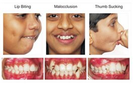 child dentist in koramangala