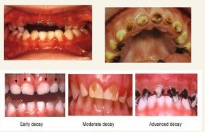 kids Dentistry In Bangalore