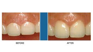 top dental care in Bangalore