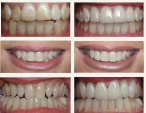 Dental laminates clinic in Bangalore